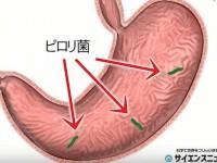 ピロリ菌は歯周病の原因? 5300年前から人類を苦しめてきた細菌の最近